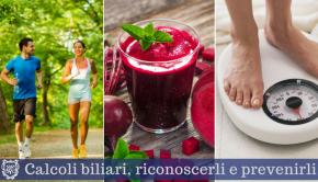 Calcoli biliari - Il Blog del Prof. Paolo Barillari