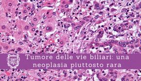 Tumore delle vie biliari, una neoplasia piuttosto rara - Il Blog del Prof. Paolo Barillari