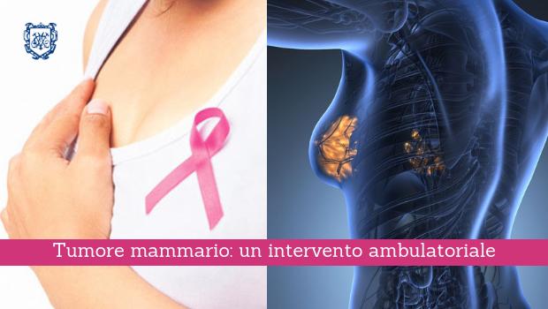 Tumore mammario, un intervento ambulatoriale - Il Blog del Prof. Paolo Barillari