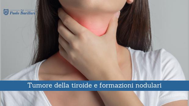 Tumore della tiroide e formazioni nodulari - Il Blog del Prof. Paolo Barillari