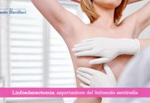 Linfoadenectomia, asportazione del linfonodo sentinella - Il Blog del Prof. Paolo Barillari
