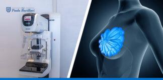 Asportazione del linfonodo sentinella, possibile in anestesia locale - Il Blog del Prof. Paolo Barillari