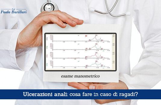 Ulcerazioni anali, cosa fare in caso di ragadi - Il Blog del Prof. Paolo Barillari